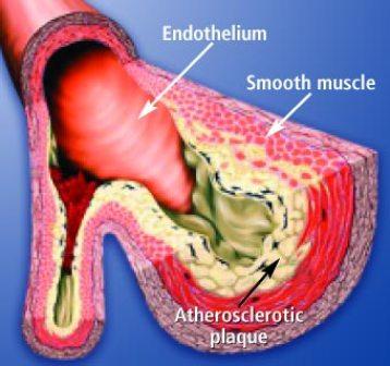 Top Foods to Unclog Arteries