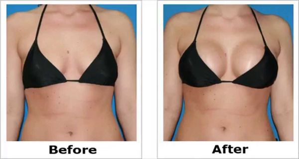 Amazing Natural Home Remedy for Larger Breasts