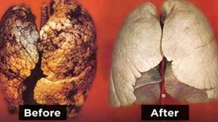 Smokers! Do this for 3 days and clean your lungs back to life