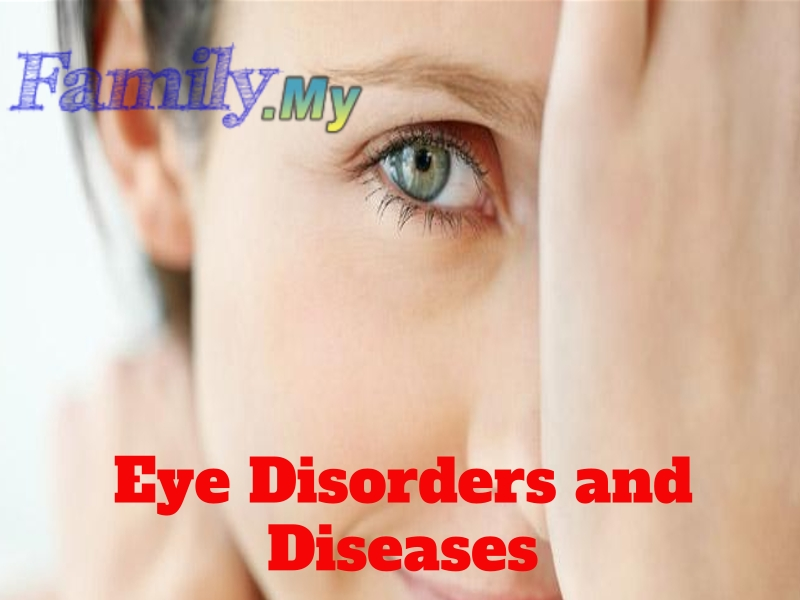 Eye Disorders and Diseases