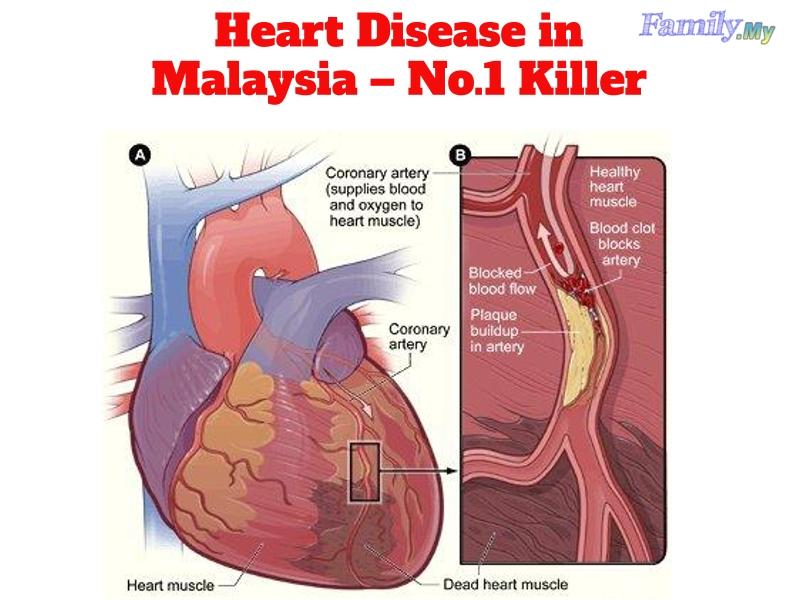 Heart Disease in Malaysia – No.1 Killer