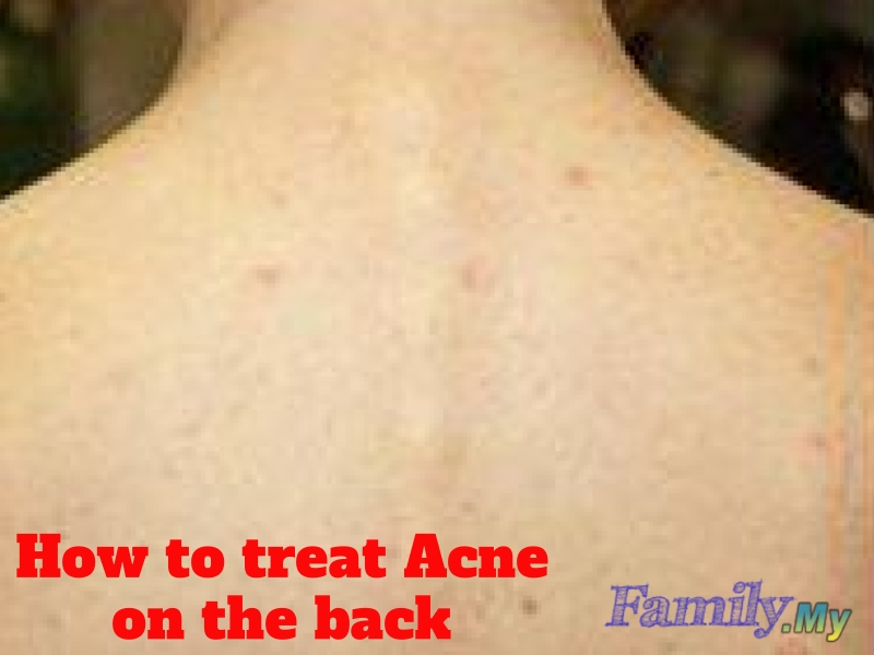 How to treat Acne on the back