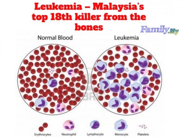 Leukemia – Malaysia's top 18th killer from the bones