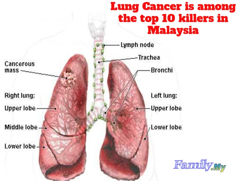 Lung Cancer is among the top 10 killers in Malaysia