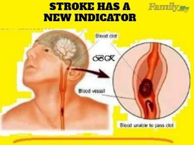 Stroke has a new indicator