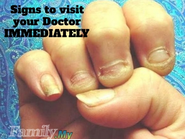 Signs to visit your Doctor IMMEDIATELY!