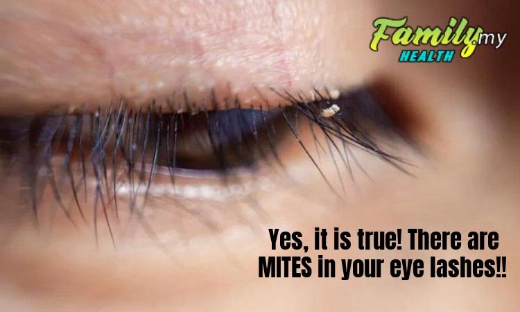 malaysia_mites_eye_lashes